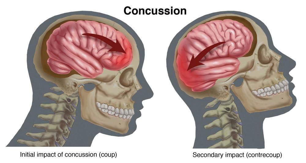 Mécanisme d'une commotion cérébrale